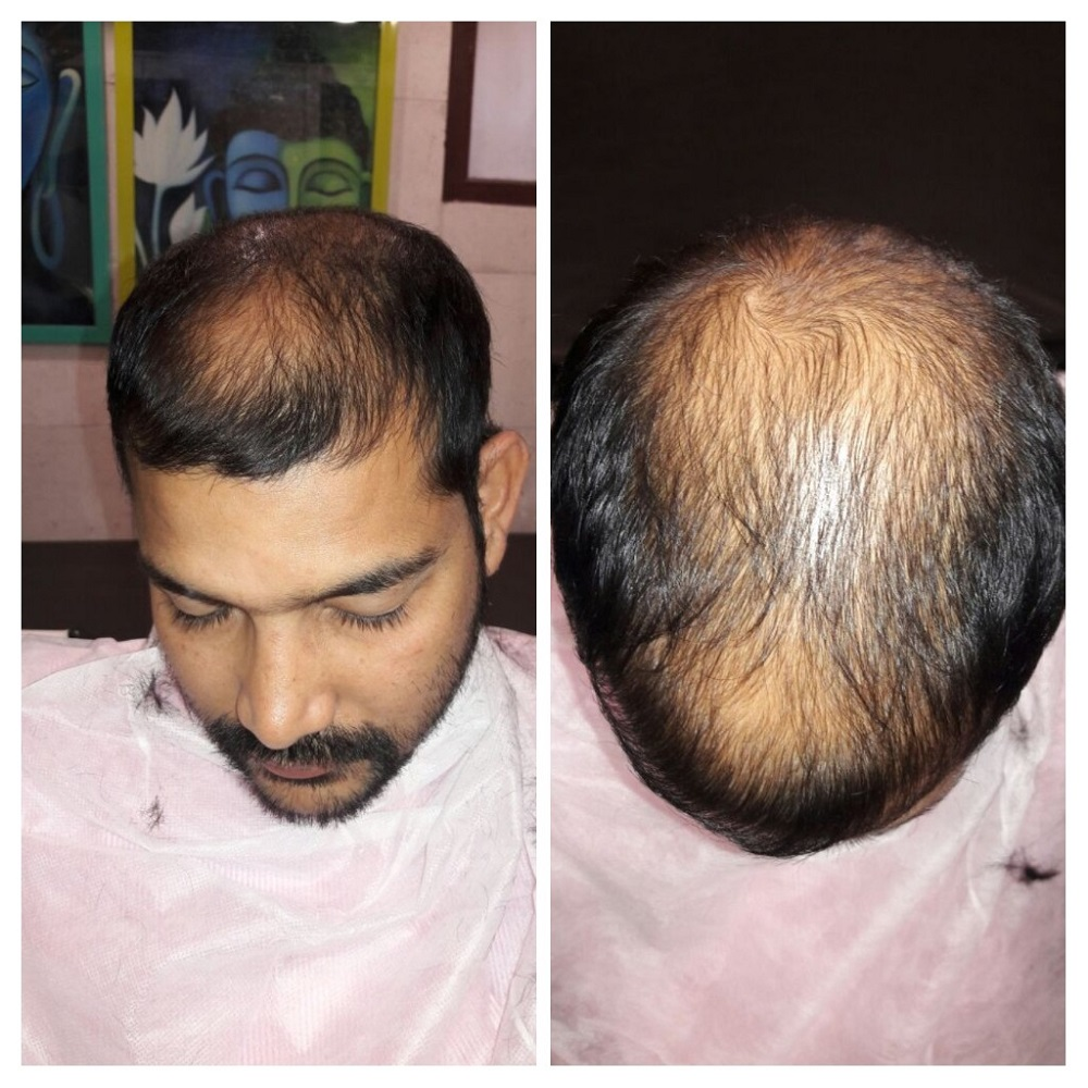 Before-Transplant in tuft area