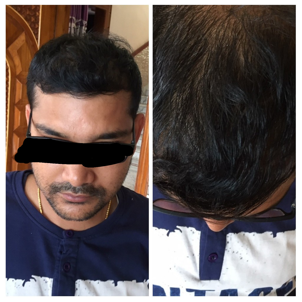 After-Transplant in tuft area