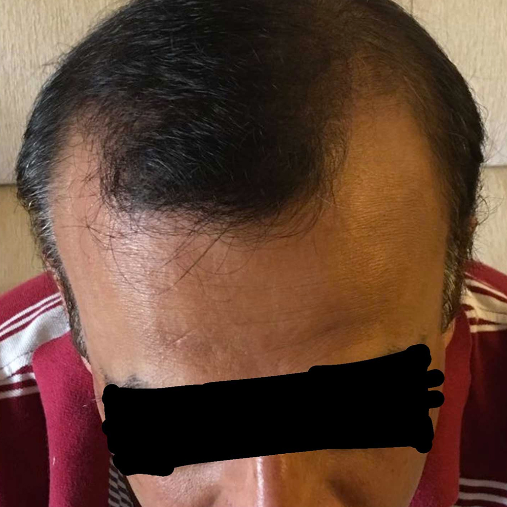 Before-Recreation of hairline