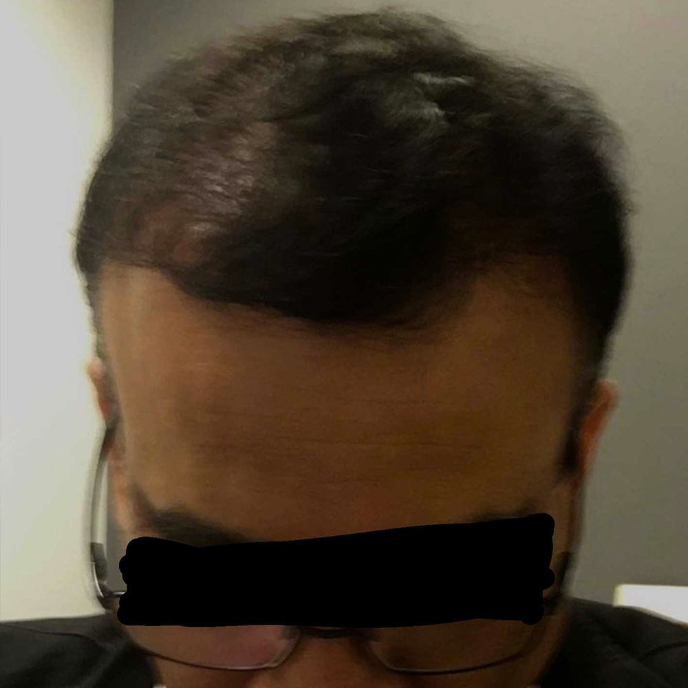 After-Recreation of hairline